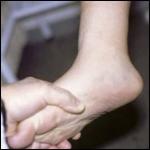 El pie plano; las recomendaciones del traumatólogo infantil al pediatra. Rev Pediatr Aten Primaria. 2011