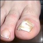 El lenguaje de las uñas. Artículo de revisión Más Dermatología 2011