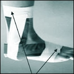 Vendaje funcional en el esguince de tobillo. Recomendaciones para Enfermería. NURE Investigación  2011