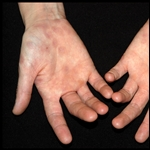 Diabetes mellitus y piel: lesiones cutáneas y su significado clínico Rev.chil. endocrinol. Diabetes 2011