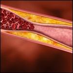 Puesta al día en el manejo de las dislipidemias. 2012