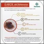 ABCDE del Melanoma. Clínica Alemana de Santiago