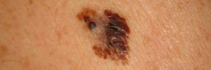Melanoma maligno y Diagnóstico diferencial. 2011