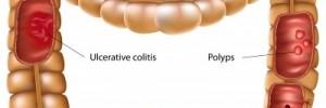 Obstrucción intestinal como comienzo de la enfermedad de Crohn,  med. gen. y fam . 2015.