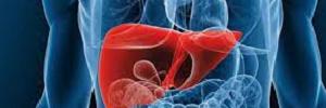 Hígado graso no alcohólico, Rev. Med. CLC – 2015