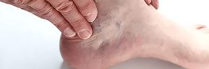 Trastornos podiátricos, riesgo de caídas y dolor en adultos mayores, Aten fam- 2016
