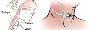 Procedimiento de traqueostomía percutánea: control y seguimiento de enfermería, Enferm Intensiva- 2009
