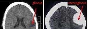 Evaluación de gliomas por técnica avanzada de resonancia magnetica, rev med clin Condes- 2017