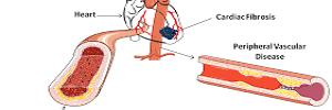 Nuevos mecanismos de fibrosis vascular: papel de la lisil oxidasa, Clin Investig Arterioscler-  2017