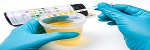 Infección del tracto urinario en pacientes hospitalizados con diabetes tipo 2, Rev. chil. endocrinol. diabetes -2016