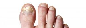 Medicación antimicótica oral para la onicomicosis de la uña del pie. Revisión Sistemática Cochrane 2017