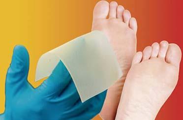 ¿Sirven los agentes antimicrobianos tópicos para el tratamiento de la úlcera del pie en pacientes con diabetes? Revisión Sistemática Cochrane 2018