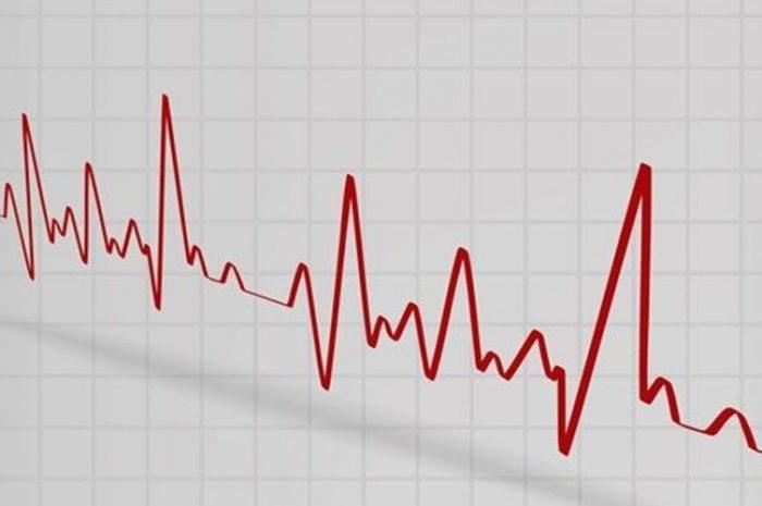 COVID-19 y afectación cardíaca Rev Chil Anest 2020