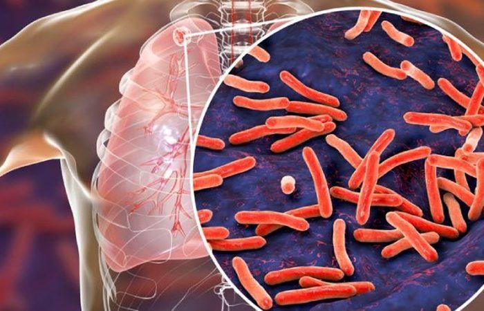 Perfil biopsicosocial del paciente con tuberculosis y factores asociados a la adherencia terapéutica Rev Chil Enferm Respir 2020